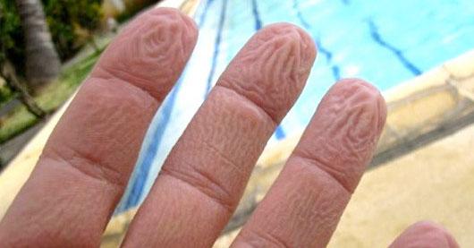 Le phénomène du fripement des doigts dans l'eau