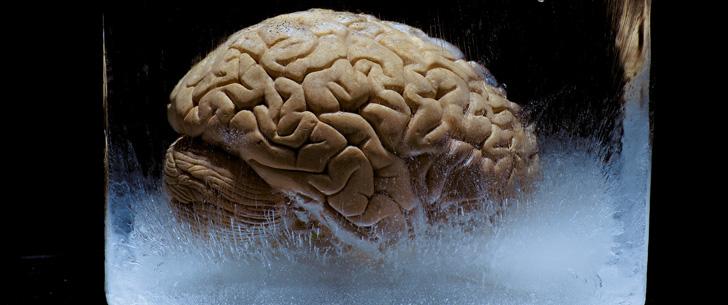 Notre cerveau est constitué de 80% d'eau !