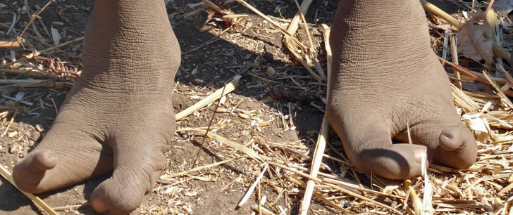 25% de la population d'une tribu au Zimbabwe sont nés avec seulement 2 orteils à chaque pied !