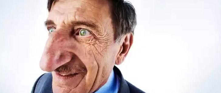 Le record du plus long nez