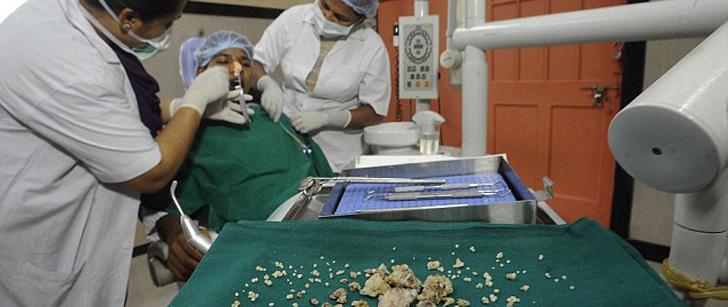 Un jeune indien s'est fait retirer 232 dents de sa bouche !