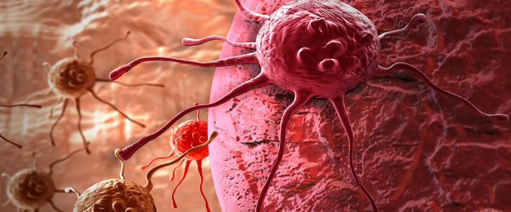 Les deux tiers des cancers sont dus à la mal chance !