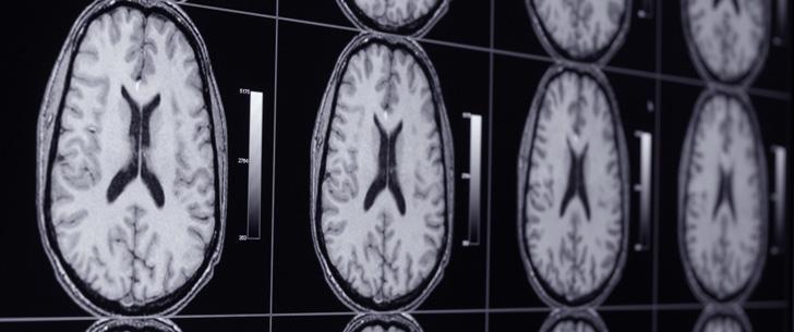 L'addiction sexuelle affecte le cerveau de la même manière que les drogues !