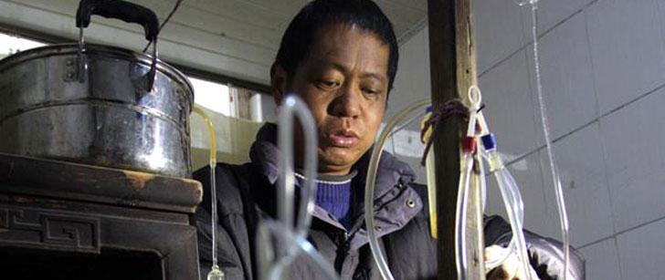 Un chinois a créé sa propre machine de dialyse qui l'a maintenu en vie pendant 13 ans !