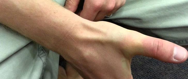 Il y a un creux dans la main appelé tabatière anatomique !