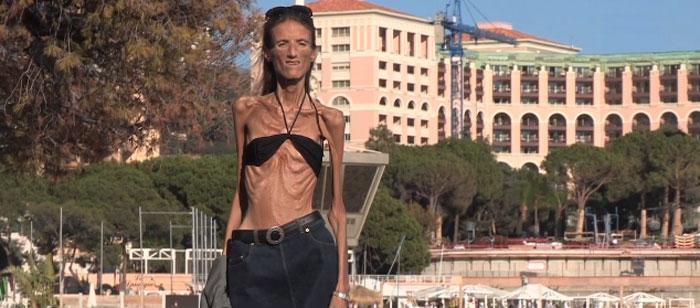 La femme la plus maigre du monde !